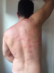 Suffering from chronic urticaria