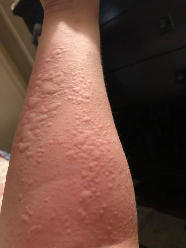 My hives appeared  2 weeks after surgery
