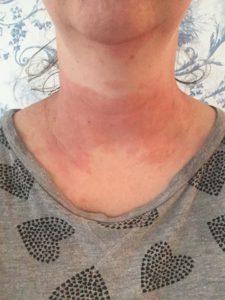 My doctor is convinced it is eczema