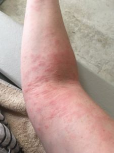 My doctor is convinced it is eczema
