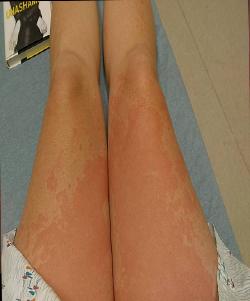 hives uc