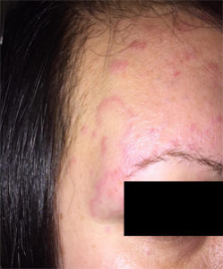 suffered with hives for almost 8 years 2