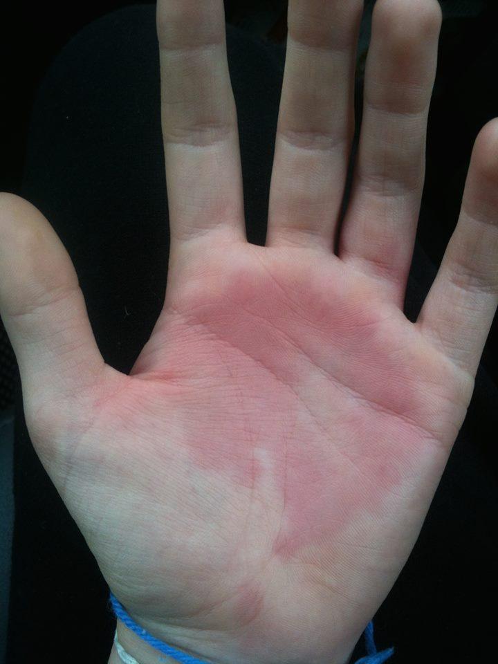 hand swelling1