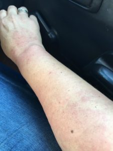 I started getting hives in October 2014