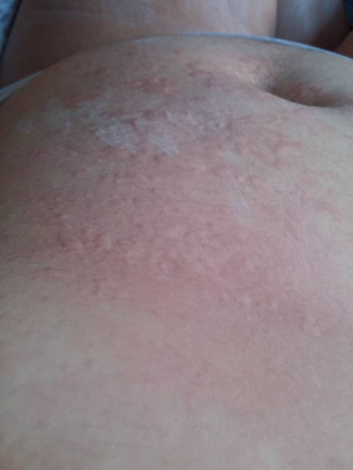 collection of hives6