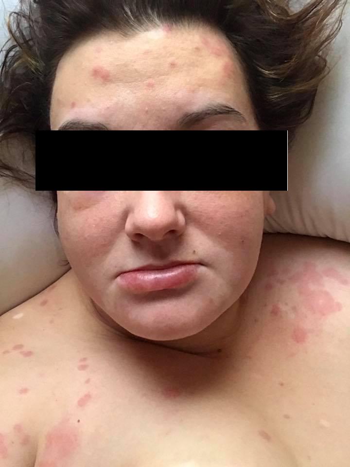Allergist/Immunologist