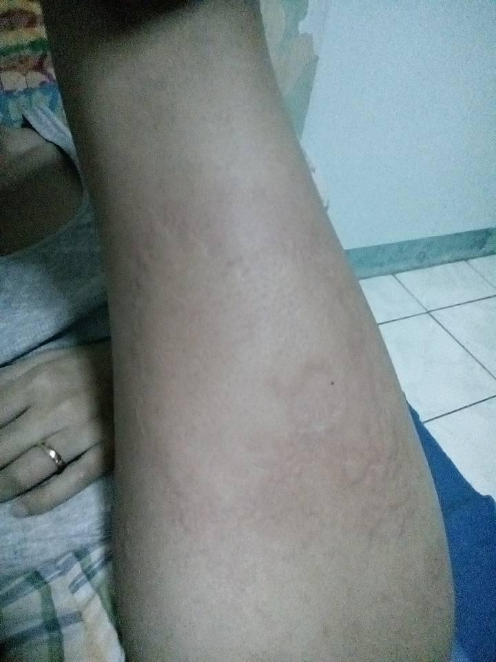 suspect is Hives/Urticaria