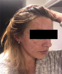 allergic reaction2