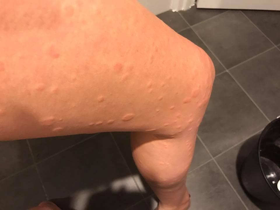 allergic reaction1