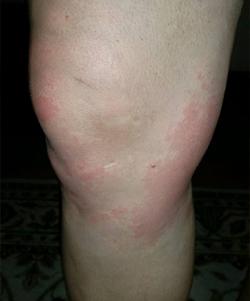 hives 23