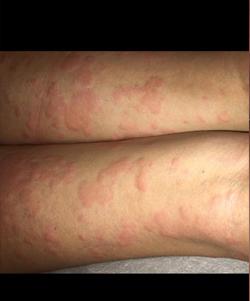 hives232