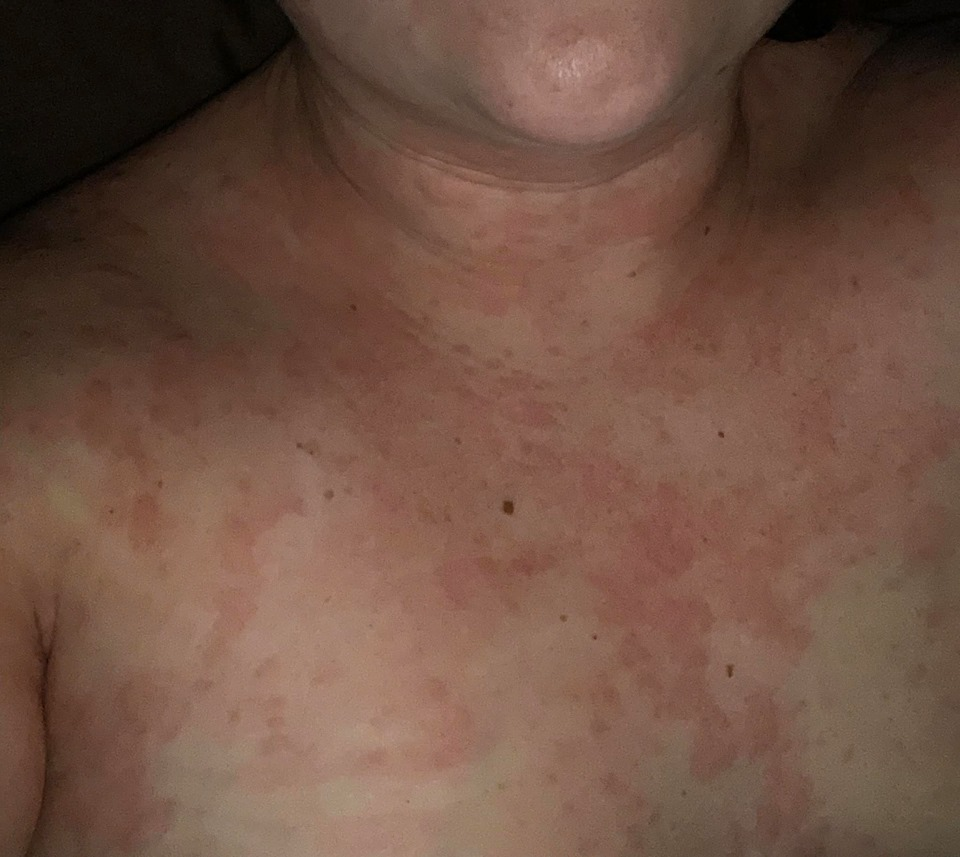 chronic hives since February 2019