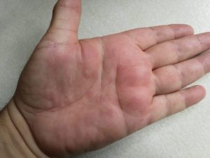 I hate hand hives