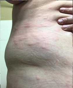 hives on body