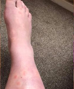 hives on leg
