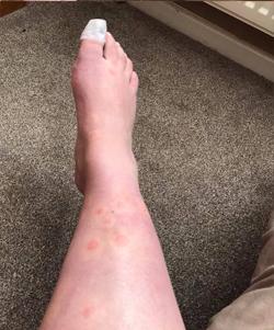 hives on leg5
