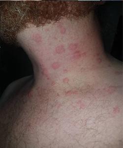 hives on nik 1