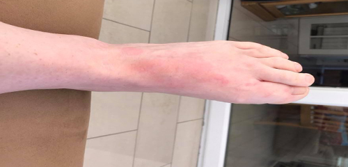 I have been getting hives everyday