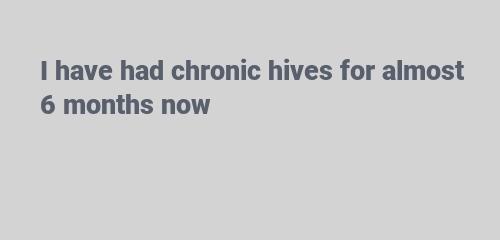 I have had chronic hives