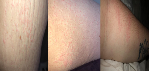 Mostly just venting, stupid bloody hives and Sick of itching