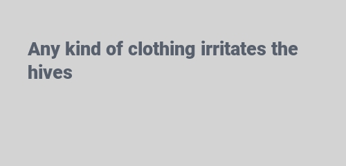 Any kind of clothing irritates the hives