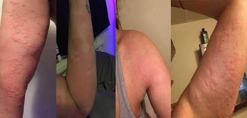 Here is my hives story and pics