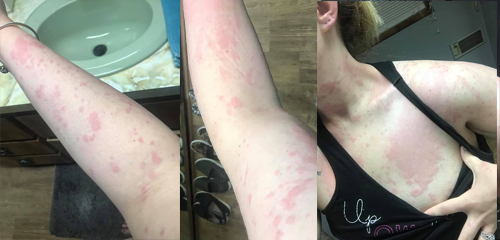 I developed these crazy hives in March