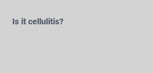 Is it cellulitis