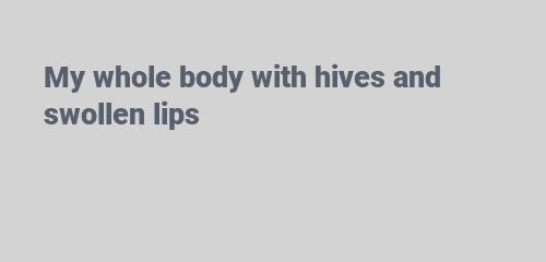 hives and swollen lips