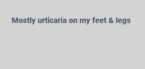 Mostly urticaria on my feet & legs