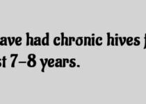 I have had chronic hives
