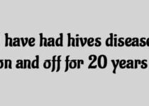 I have had hives disease on and off for 20 years