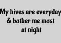 My hives are everyday & bother me most at night
