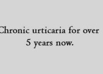 Chronic urticaria for over 5 years now.