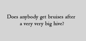 Does anybody get bruises after a very very big hive