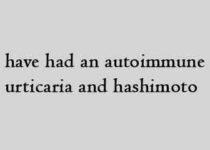 I have had an autoimmune urticaria and hashimoto