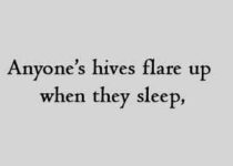 Anyone's hives flare up when they sleep,