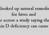 I looked up natural remedies for hives and came across a study saying that a Vitamin D deficiency can cause hives.