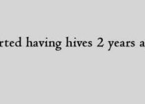 I started having hives 2 years ago.