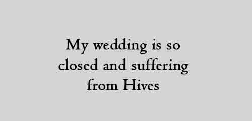 My wedding is so closed and suffering from Hives