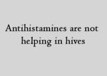 Antihistamines are not helping in hives