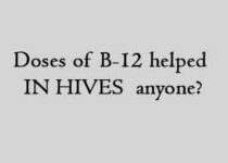 doses of B-12 helped IN HIVES anyone
