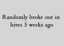 randomly broke out in hives 5 weeks ago