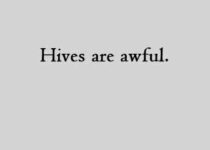 Hives are awful.